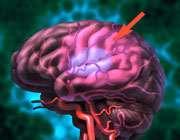 سکته مغزی - بخش اول