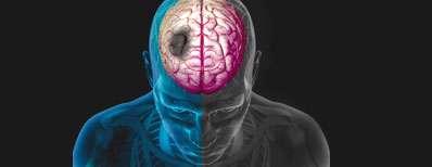 علائمی از سکته مغزی که نمی شناسید