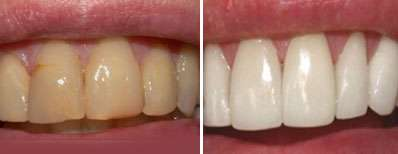 تا عید دندان هایتان را سفیدتر کنید
