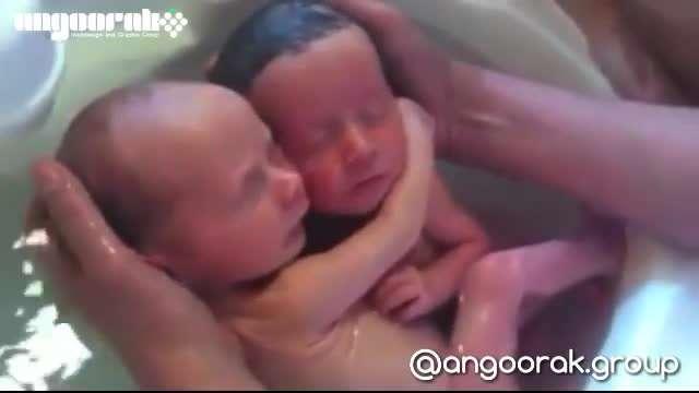 دوقلوهایی که بدنیا اومدن ولی فکر میکنن که هنوز بدنیا نیومدن!؟