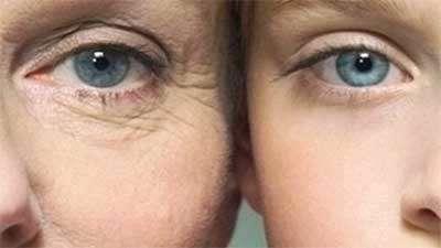 جلوگیری از پیری پوست و درمان جوش صورت