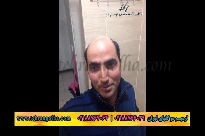 ترمیم مو و کاشت مو گلهای تهران به روش انحصاری های فیکس آلمان