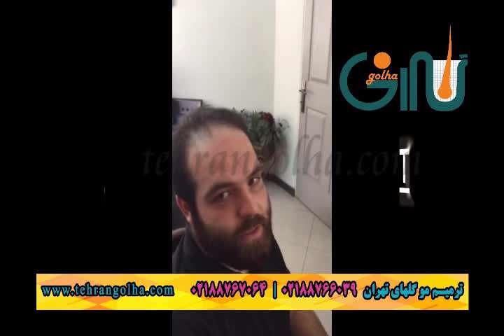 ترمیم مو و کاشت مو به روش ترمیم مو انحصاری های فیکس گلهای تهران
