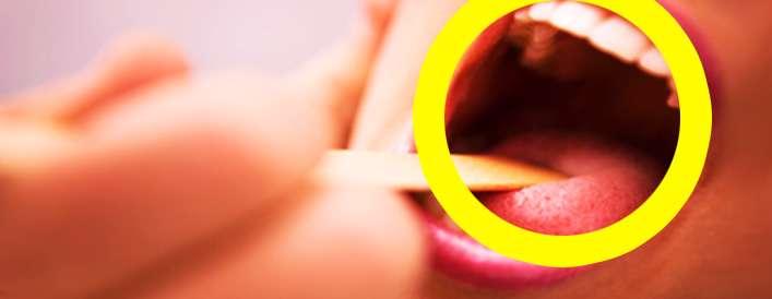 گلودردتان را در خانه درمان کنید
