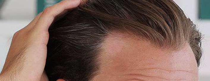 چرا موها نازک می شوند؟