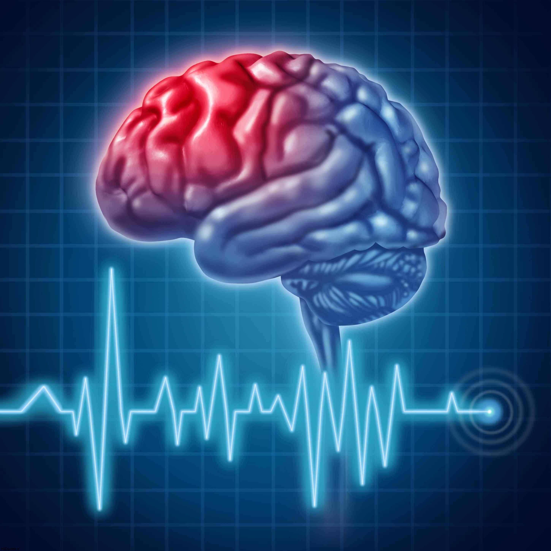 علامت های هشدار در سکته مغزی