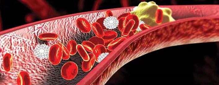 6 ماده ی غذایی مضر برای کلسترول خون بالا