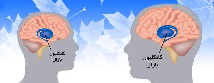 بیماری هانتینگتون؛ مرگ سلول های عصبی مغز