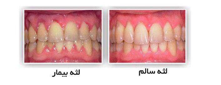 10 نشانه مشکلات دهان و دندان