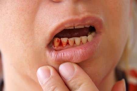 حکم خونریزی دندان و لثه شخص روزه دار