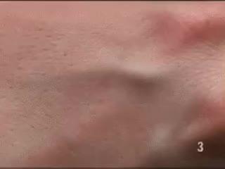 #پوست دست در زیر #میکروسکوپ     🆔 @metallurgydata  : کانال دانش