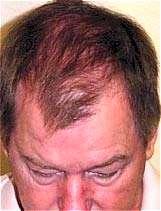 ارتباط حملات قلبی با ریزش موی سر در آقایان