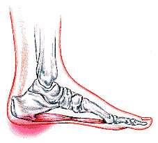 ترك پا چیست؟