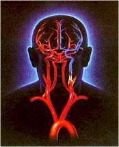 غذاهای موثر در پیشگیری از سكته مغزی