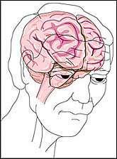 نقش هموسیستئین در بروز آلزایمر