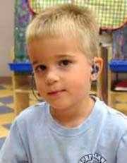درمان کودکان کم شنوا را از دست ندهید