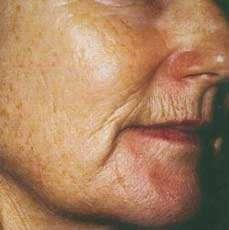 با خطوط پوستی که در بدن ایجاد می شود چه کنیم؟