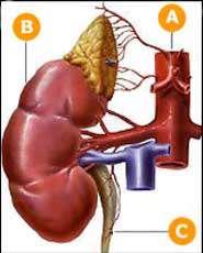 رژیم غذایی در افراد مبتلا به سنگ های کلیه (1)