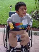 بهداشت کودکان معلول