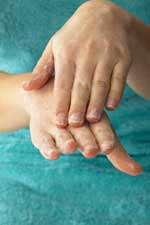 خشکی پوست و درمان آن(2)