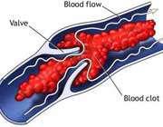 توصیههای مفید برای پیشگیری از لخته شدن خون