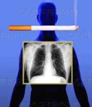 سرطان ریه و علائم آن