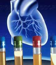 دیابت باعث سکته ی قلبی می شود