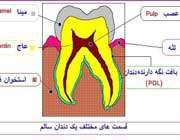مراحل پُر کردن دندان(با تصاویر)