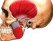 درمان درد مفصل گیجگاهی- فکی