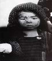 enfant victime du bombardement nucléaire d'hiroshima par les etats-unis en août 1945