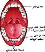از دست دادن دندان ها