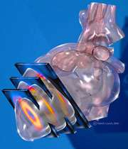 چگونگي تصويربرداري از قلب توسط اسپکت.