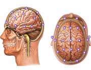 10 عامل مهم تخریب مغز