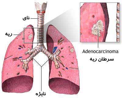 تصاویر پزشکی برخی از سرطان ها
