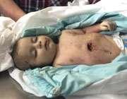جنایات در غزه