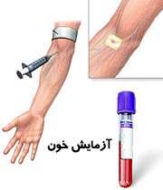 خونگیری و آزمایش خون
