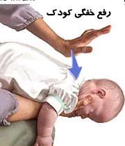 رفع خفگی کودک