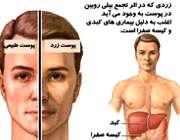کبد و پوست