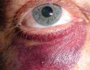 بهبود کبودي دور چشم