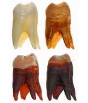 نوشیدنی های اسیدی باعث تخریب دندان می شوند