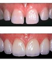 درمان فاصله بین دو دندان