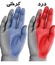درد و کرختی دست