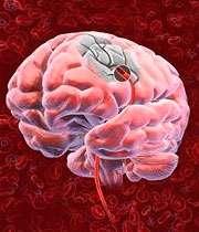 سکته های مغزی و علائم آن
