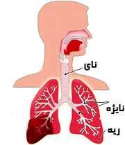 بیماری انسدادی مزمن ریوی ؛ علل و علایم