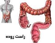 نکاتی درباره التهاب راست روده