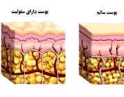چرا دچار سلولیت می شویم؟