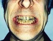 درمان خانگی 5 مشکل دندانی