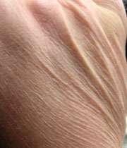 خشکی لب و پوست در روزه داران