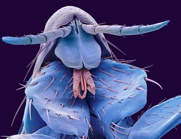 هیولاهای میکروسکوپی