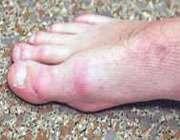 بیماری های مربوط ناخن به پا